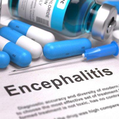 Tick Borne Encephalitis*