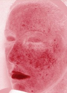 MURAD skin scanner_redness
