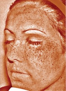 MURAD skin scanner_sun damage