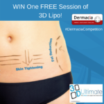 WIN One FREE Session of 3D Lipo with Dermacia!